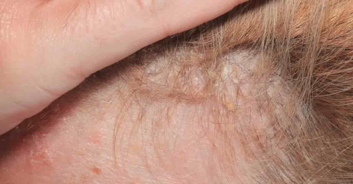 Saç Derisinde Kırmızı Lekeler Neden Olur