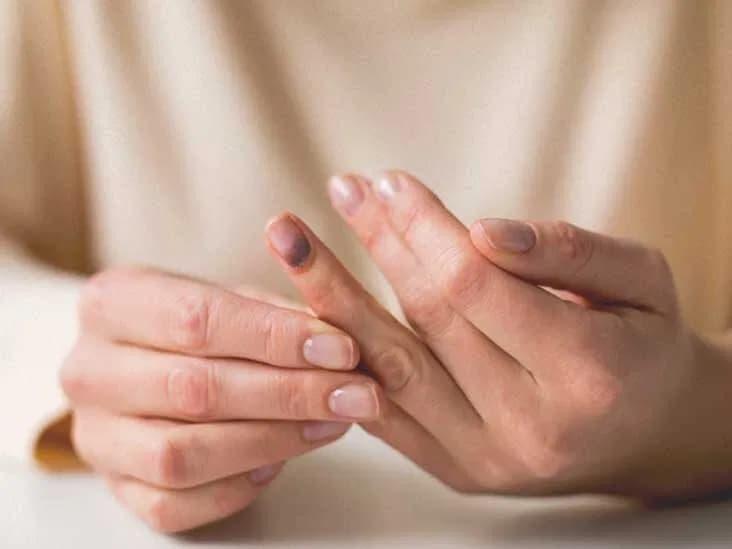 Darbe Sonucu Tırnak Morarması Nasıl Geçer